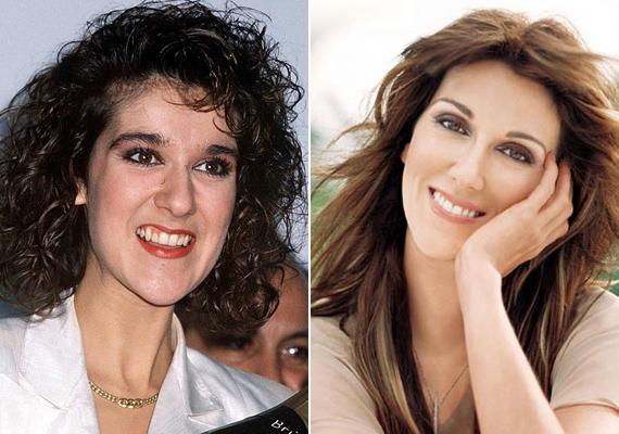 """Céline Dion csak a """"vámpírfogait"""" csiszoltatta lejjebb. A nagy szemfoga nélkül sokkal szebb az énekesnő mosolya."""