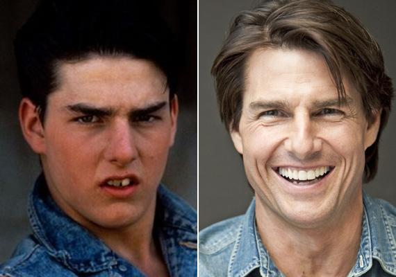Tom Cruise ezzel a mosollyal bizonyosan nem lehetett volna szívtipró. A fogászok csodás munkát végeztek rajta, még arra is ügyeltek, hogy a beültetett fogai különböző méretűek legyenek, a természetes hatás kedvéért.