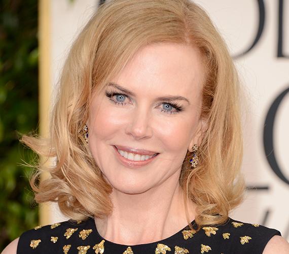 Nicole Kidmannek szintén az állatok, egészen pontosan a pillangók okoznak problémát. A színésznő nem csupán undorodik tőlük, de az érintésüktől is kifejezetten rosszul van.