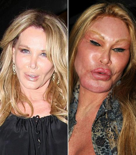 Jocelyn Wildenstein                         A milliomos sztárhölgy az egyik leghírhedtebb plasztikai roncs, aki szó szerint tigrissé operáltatta magát, ezért kiérdemelte a Macskanő becenevet.                         Kapcsolódó cikk:                         Végképp eltorzult az arca! Rémmé műttette magát a Macskanő