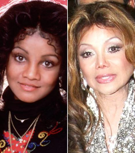 Latoya Jackson                         A Jackson-famíliában bevett szokás a túlzásba vitt plasztikáztatás, és ez alól Latoya sem kivétel. Tucatnyi műtét során a sebészeknek sikerült durván szétszabniuk az arcát.