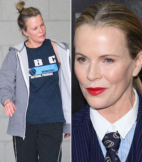 Kim Basinger                         A 60 évet is betöltött színésznő lenyűgöző smink nélkül is, bár az öregedés jelei a sok botox miatt nem látszanak rajta.                                                  Kapcsolódó cikk:                         Friss fotóival bukott le Kim Basinger! Átszabatta az arcát a 60 éves színésznő