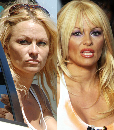 Pamela AndersonRégen volt már, amikor az egykori Baywatch-bigéért minden pasi rajongott. Manapság leginkább kínos megjelenésekkel próbálja visszakaparni magát a szexbombák közé.