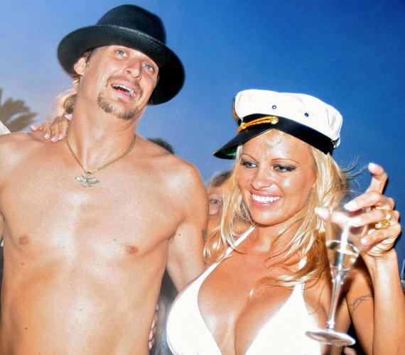 Az egykori kebelcsoda és Baywatch-cica Pamela Anderson második férjeKid Rock volt, ám csak egy évet bírtak ki egymással.