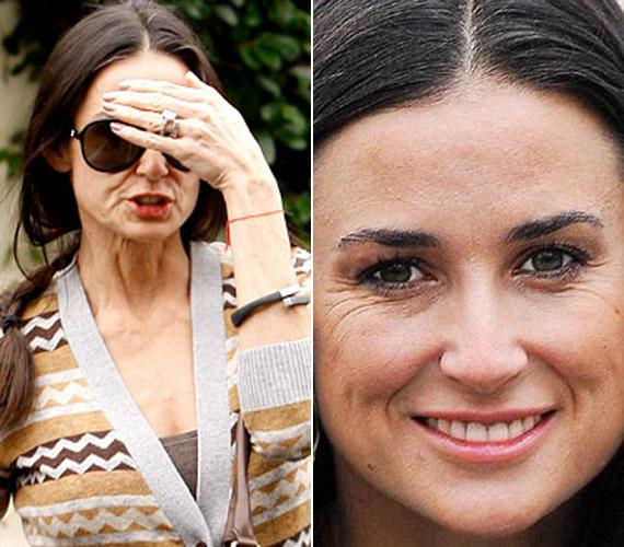 Demi Moore-on mindig elcsodálkozunk, hogy milyen jól néz ki korához képest. Valószínűleg a botox a titok nyitja, kezelés előtt ugyanis így fest.