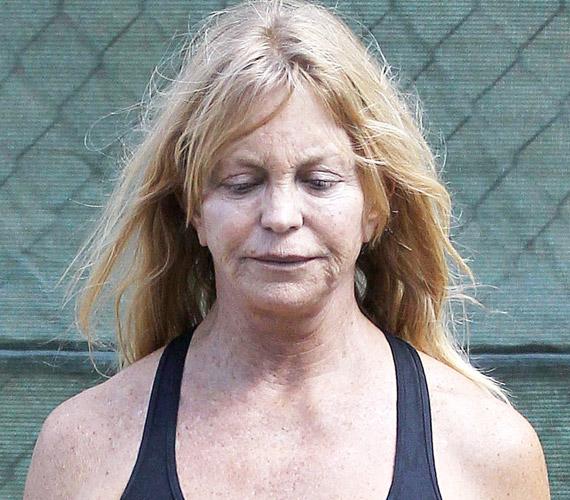 Goldie Hawn egy-egy eseményre gyönyörű tud lenni, ha akar, számtalan jó praktikát ismer a ráncok eltüntetésére, fő fegyvere mégis a botox.