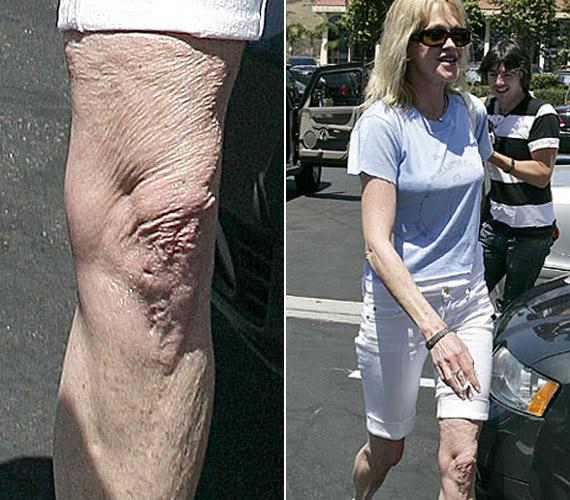 Melanie Griffith-nek is tartózkodnia kellett volna a rövidnadrágtól.