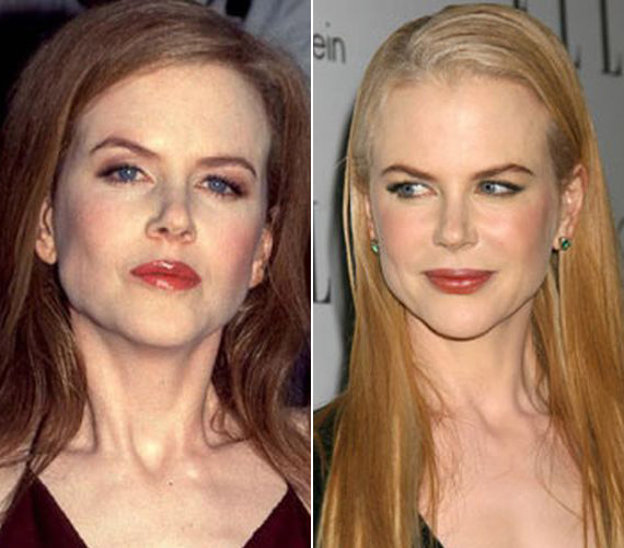 Nicole Kidman arcizmai is az idegméreg áldozatául estek, de ő bejelentette, nagyot hibázott, és többé nem kezelteti magát ilyen módszerrel.