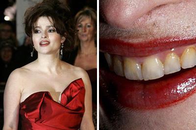 Helena Bonham Carter színésznő sárga fogsora és szőrös szája