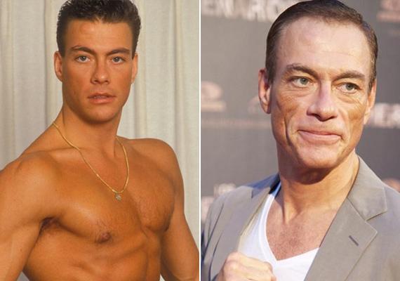 Ironikus módon Jean-Claude van Damme arca a sorozatos ráncfelvarrásoktól fittyedt le ennyire. Lekonyult ajkai is természetellenesen festenek, amikor mosolyra húzná a száját a színész.