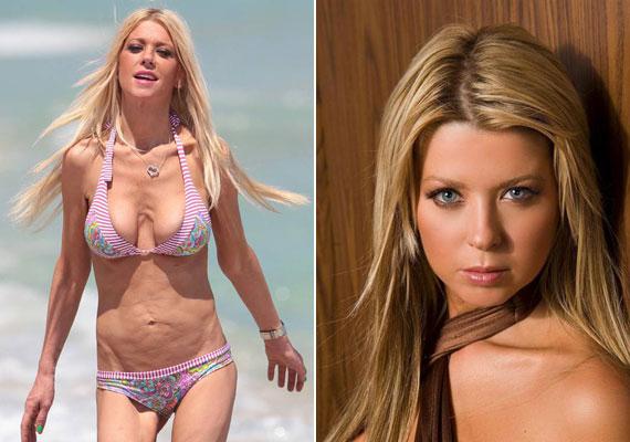 Tara Reid 40 éves korára elvesztette bájosságát, szép arcát és testét is. A színésznő évek óta anorexiás, és számtalanszor plasztikáztatott már.