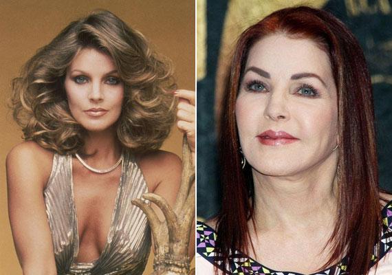 A másik nagy botoxkirálynő Elvis Presley egykori felesége, Priscilla Presley, akinek kisimult arca mindennek mondható, csak nem természetesnek. Az arcáról az összes mimika eltűnt.