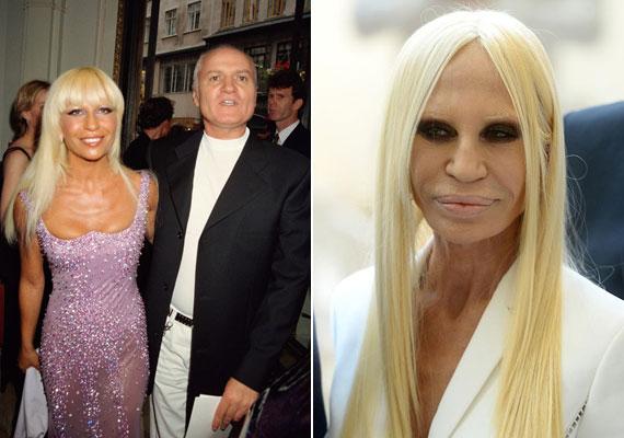 Talán a legmeghökkentőbb változást Donatella Versace produkálta, akiről már megsaccolni sem lehet, hány éves lehet. A bal oldali fotó a '90-es éveben készült, ahol testvérével látható. Egy gyönyörű nő képe köszön vissza ránk, nem úgy, mint a legfrissebb fotón, melyen a Versace-divatház hatvanéves művészeti igazgatója inkább egy ijesztő rémre hasonlít.