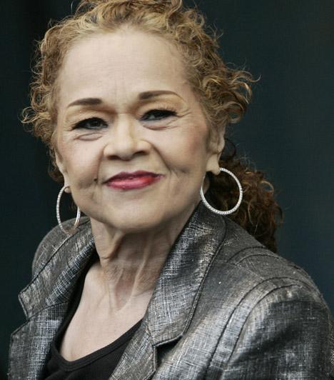 Etta James (1938-2012)Az amerikai blues- és soul-legendát sokáig leukémiában és veseelégtelenségben szenvedett,utolsó éveiben már nem tudott beszélni, az időskori demencia miatt pedig a tudata sem volt tiszta. 2012. január 20-án hunyt el, öt nappal később ünnepelte volna 75. születésnapját.Kapcsolódó cikk:Két fia gyászolja! Hosszú betegség után elhunyt a szeretett énekesnő »