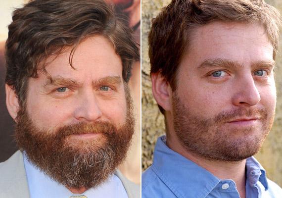 Zach Galifianakis, a Másnaposok sztárja levágatta szakállát és le is adott pár kilót.