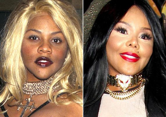 Lil Kim a rengeteg plasztikától változott meg 1995 óta.